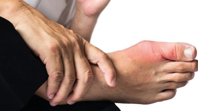 Remedios caseros para combatir la gota, hiperuricemia o ácido úrico alto